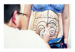 Liposukcja laserowa Palomar Slim Lipo 3D